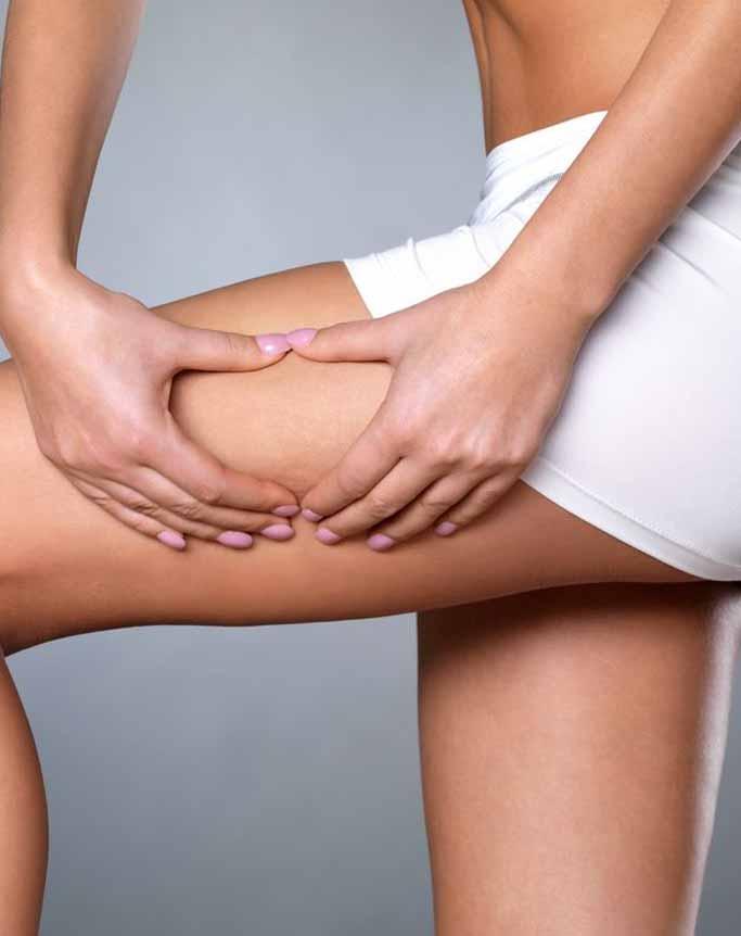 La liposuccion en Tunisie : Une pratique de pointe